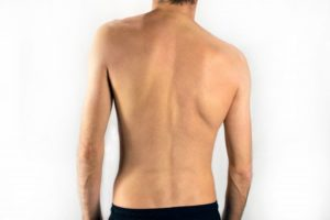 man with scoliosis in Richardson