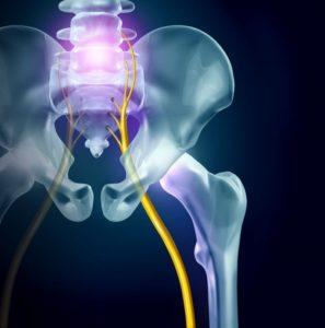 sciatica nerve triggering back pain in Richardson